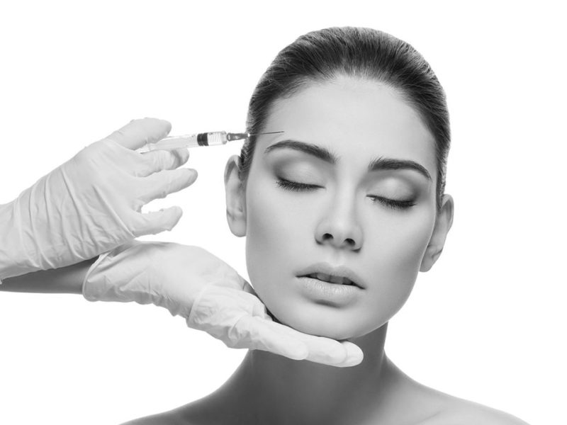 Botox voorhoofdrimpels