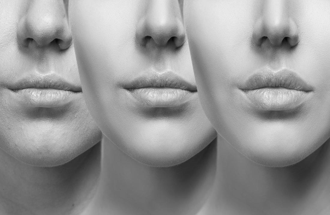 Lippen fillers